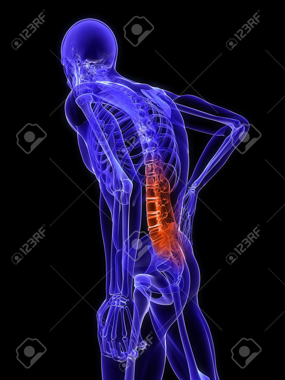 3d rendered medical x-ray illustration -  male backache Stock Illustration - 11023618