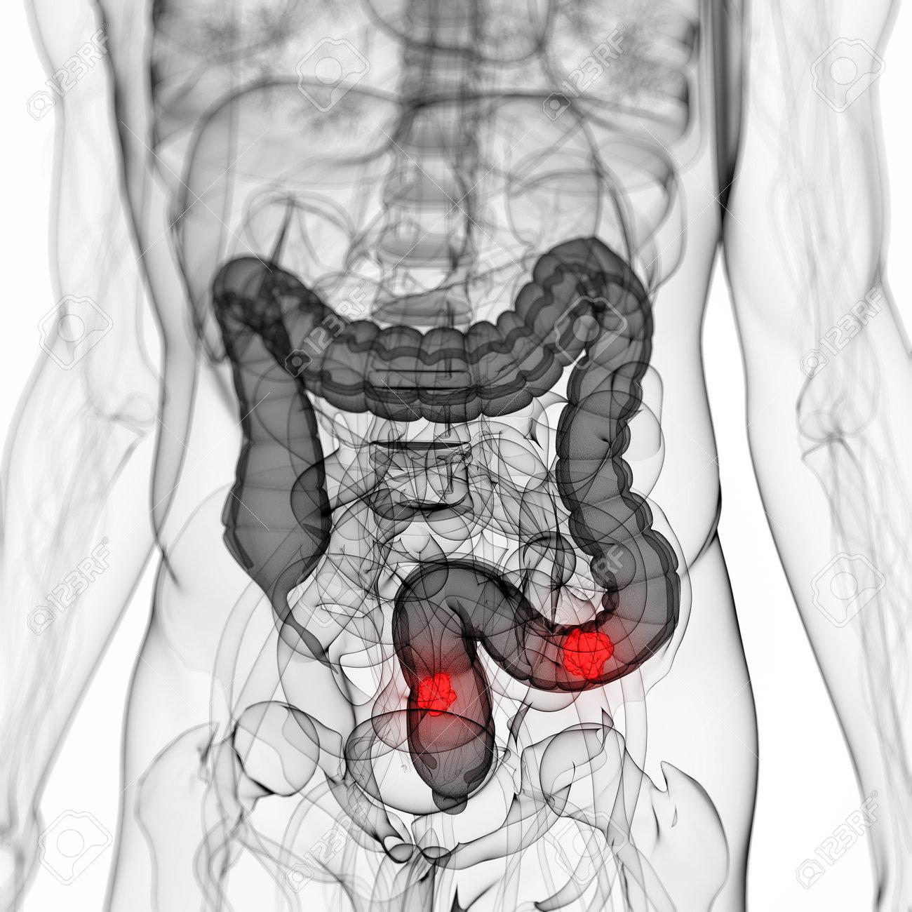 3d rendered scientific illustration of a colon tumor Stock Illustration - 13004840