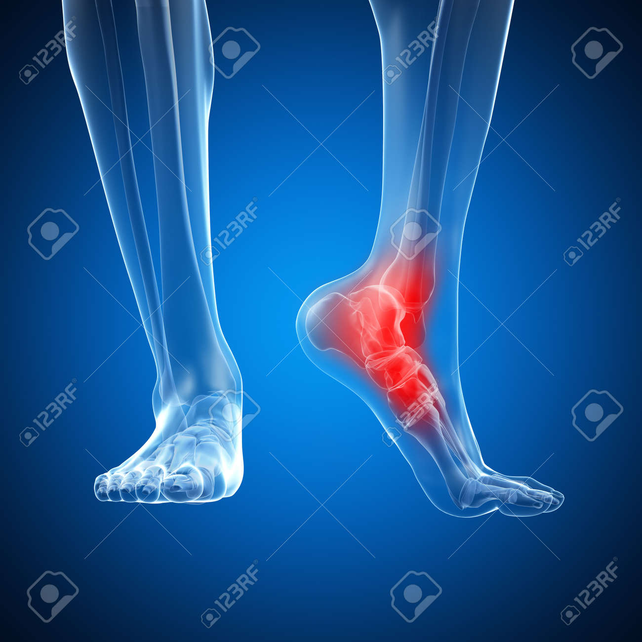 3d Rendered Illustration Of A Painful Ankle Stock Photo, Picture And ...
