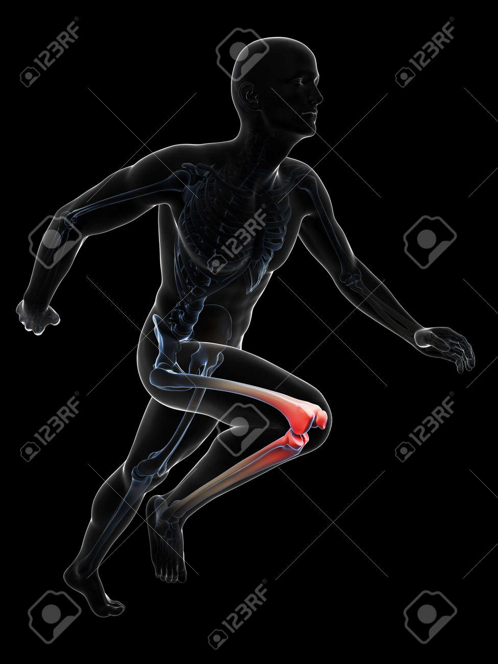 3d rendered illustration - painful runner joints Stock Photo - 18070614