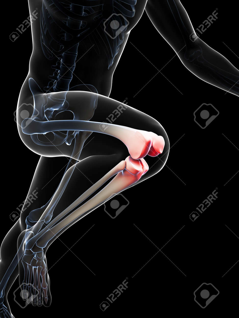 3d rendered illustration - painful knee Stock Illustration - 18070930