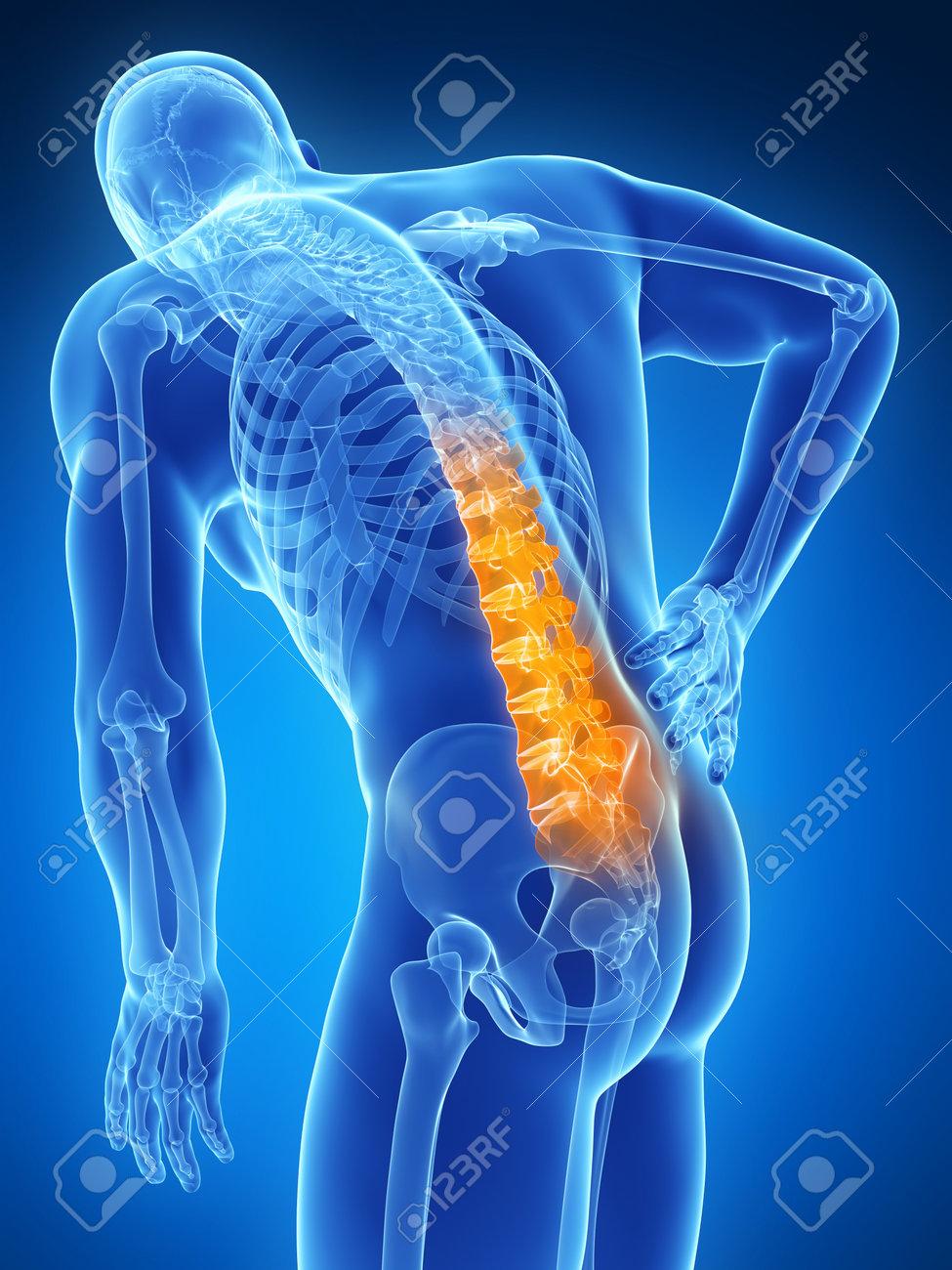 「腰痛 フリー素材」の画像検索結果