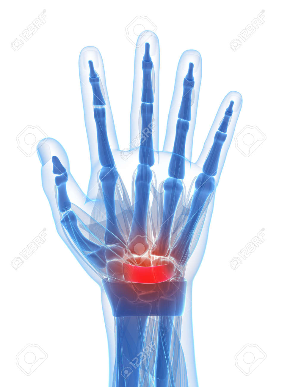 3d Rendered Illustration Of The Carpal Tunnel Syndrome Stock Photo ...