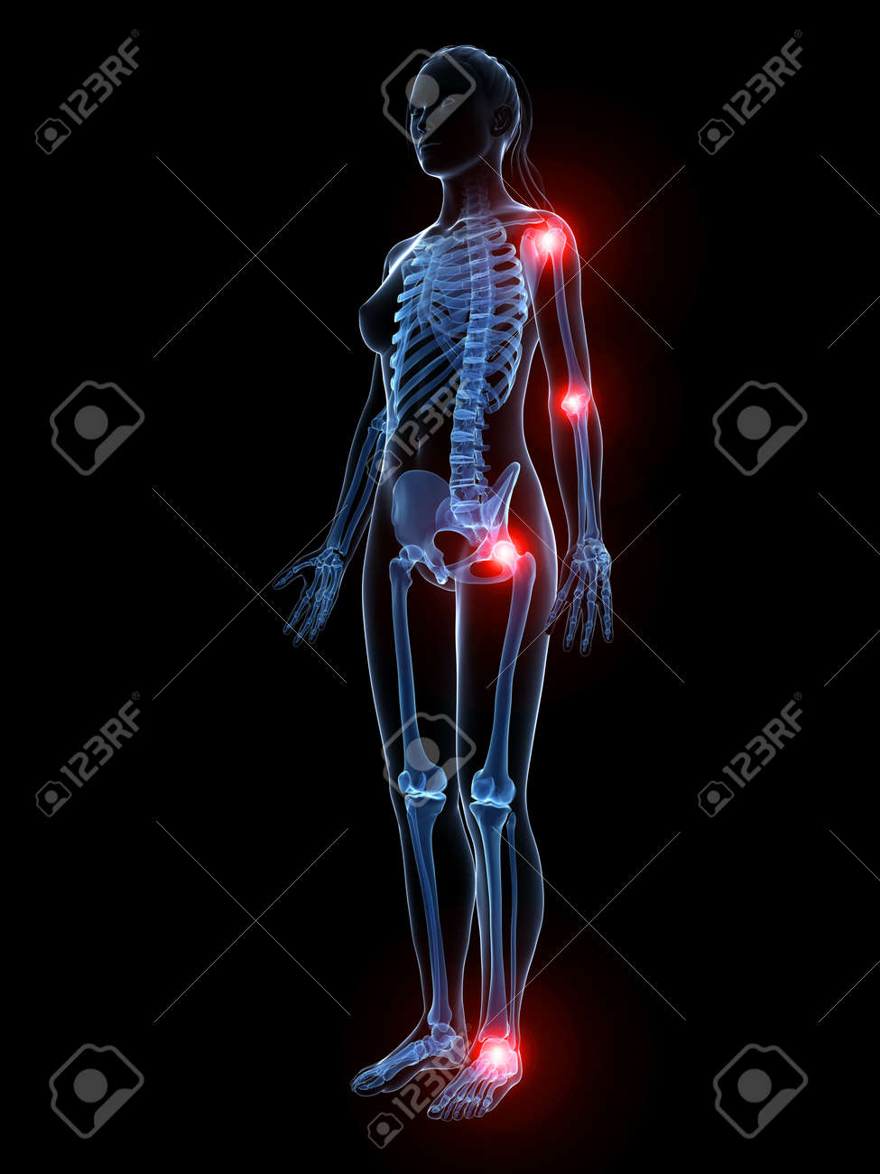 3d rendered illustration of painful joints Stock Illustration - 18448180