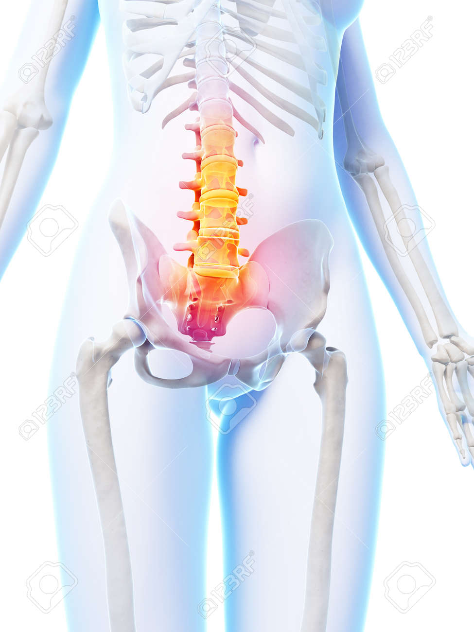 3d Rendered Illustration Of A Painful Lower Spine Stock Photo