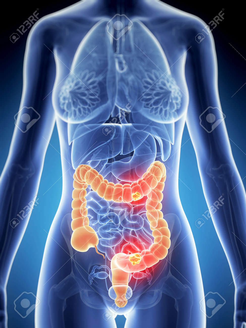 3d rendered illustration of colon cancer Stock Photo - 19040348
