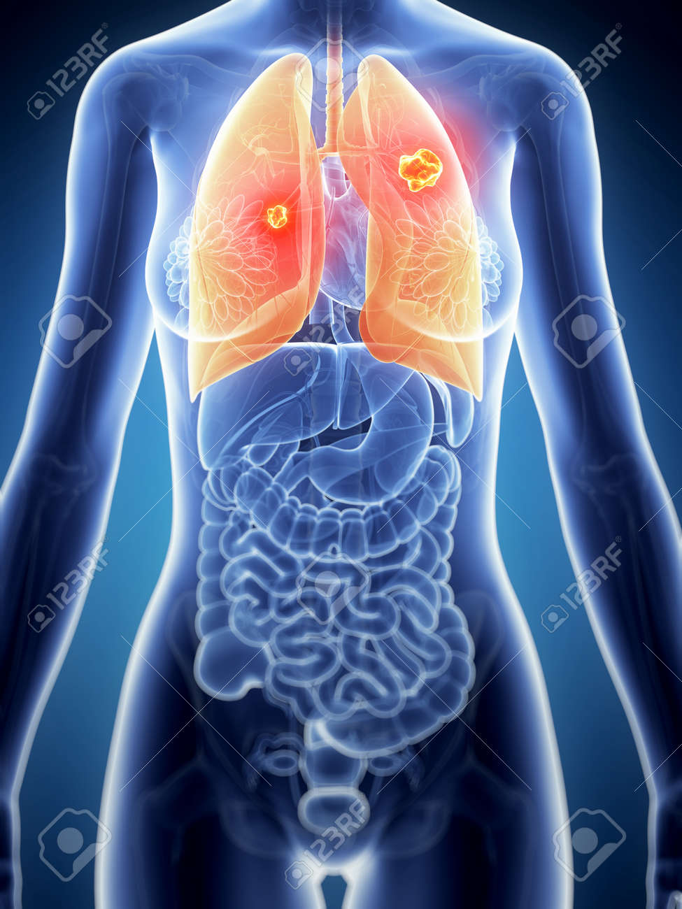 3d Rendered Illustration Of The Female Anatomy Lung Cancer