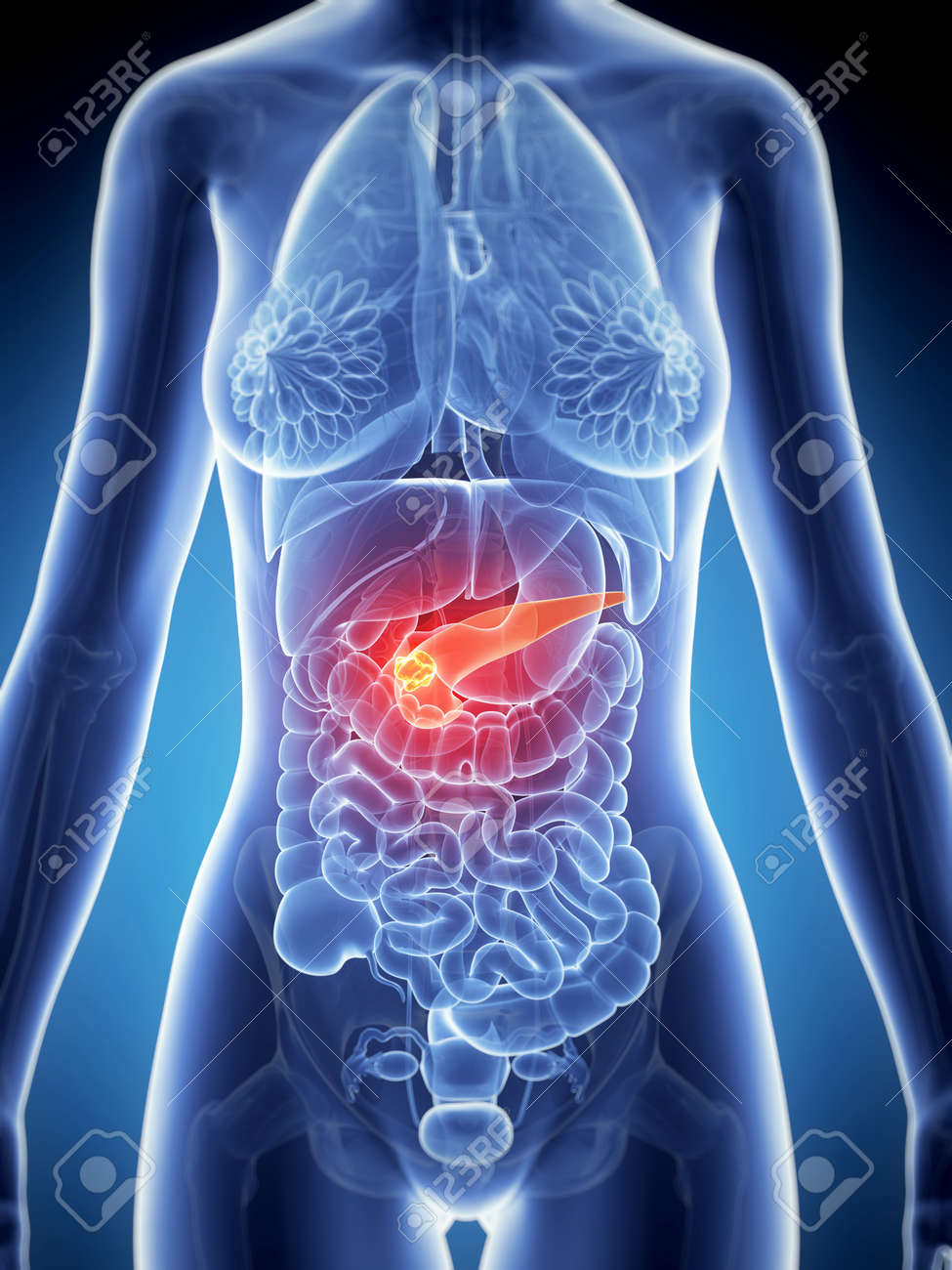 3d Rendered Illustration Of The Female Anatomy - Pancreas Cancer ...