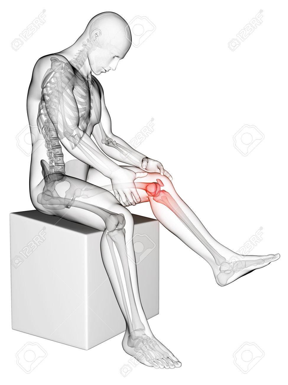 3 D レンダリングされた医療イラスト 膝の痛み の写真素材画像素材