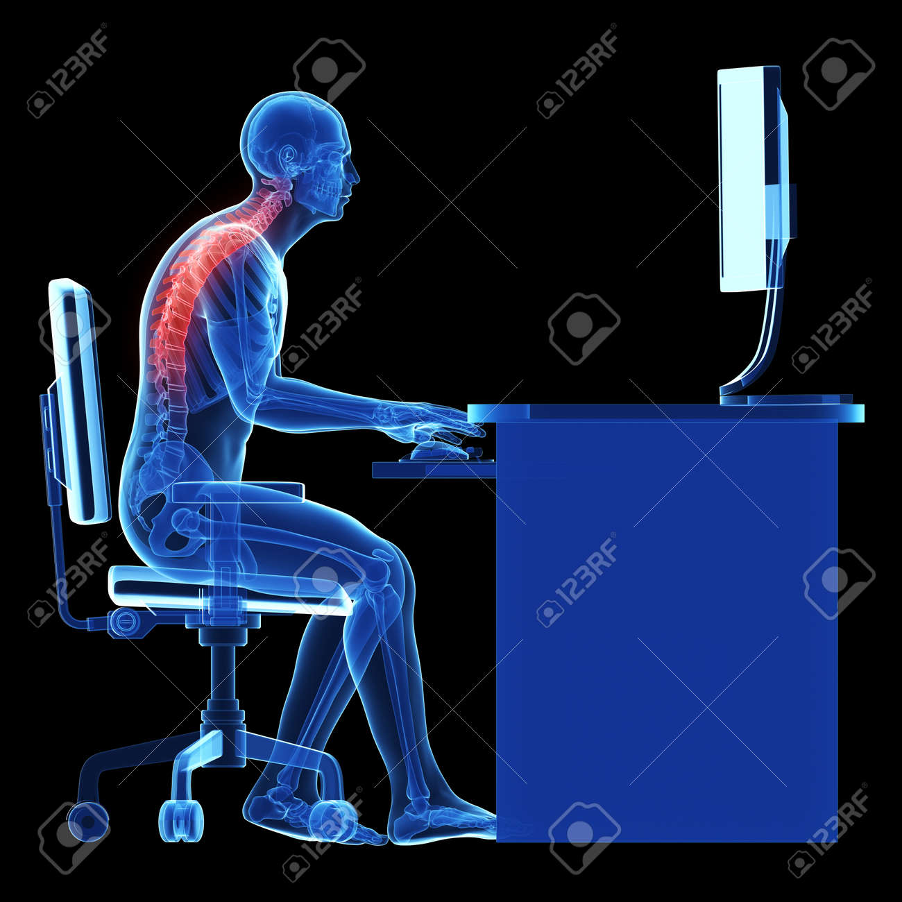 3d rendered medical illustration - wrong sitting posture Stock Illustration - 22584223