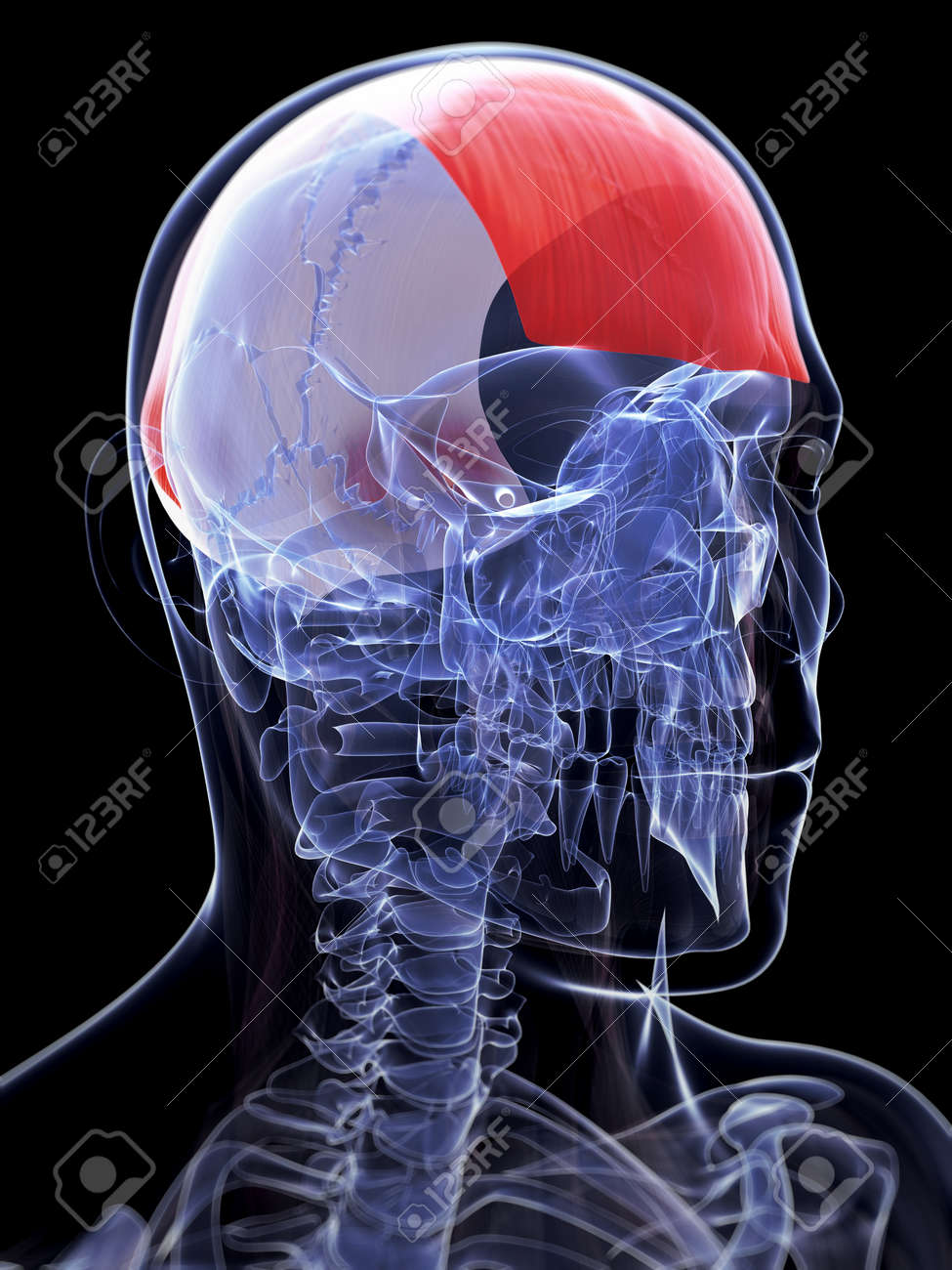 3d Rendered Illustration Of The Frontalis Muscle Stock Photo ...