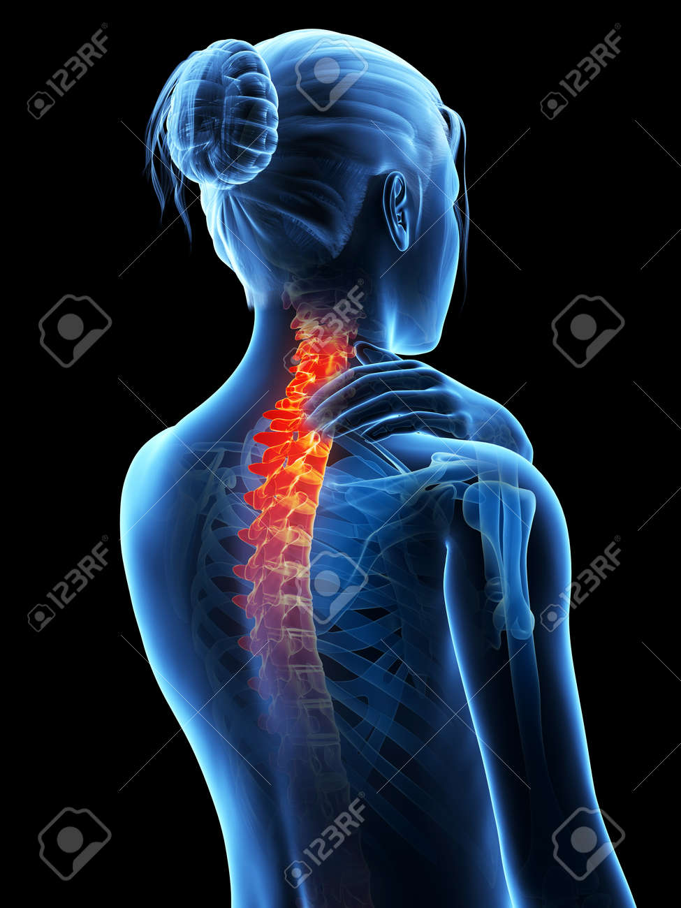 medical 3d illustration - woman having a painful neck - 26686558