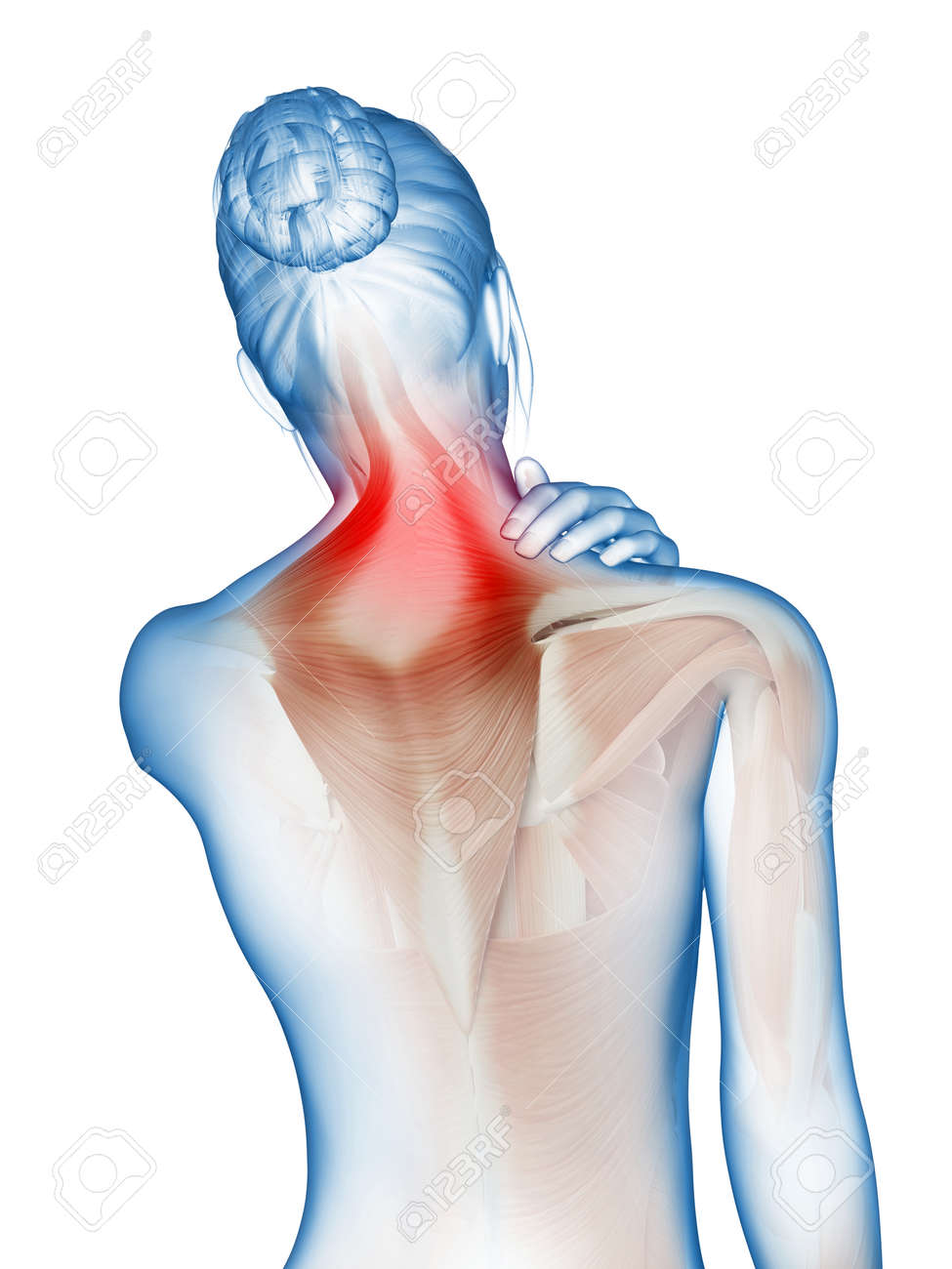 A Woman Having Acute Pain In The Neck Muscles Stock Photo Picture