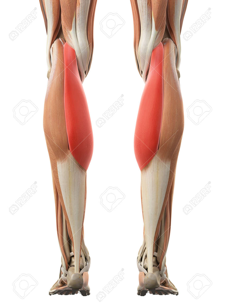 Medically Accurate Illustration Of The Gastrocnemius Medial Head ...