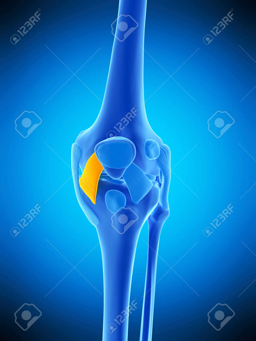 Medically Accurate Illustration Of The Medial Patellar Ligament