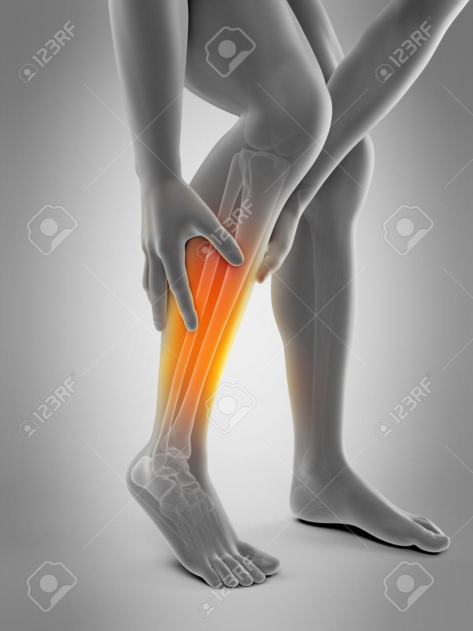 ふくらはぎの痛みの医学的に正確な 3 D イラスト の写真素材画像素材