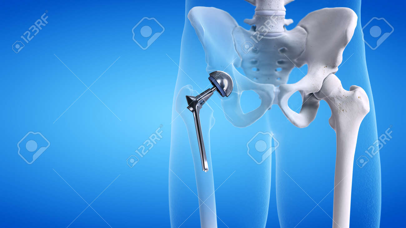 3d rendered medically accurate illustration of a hip replacement - 115691940