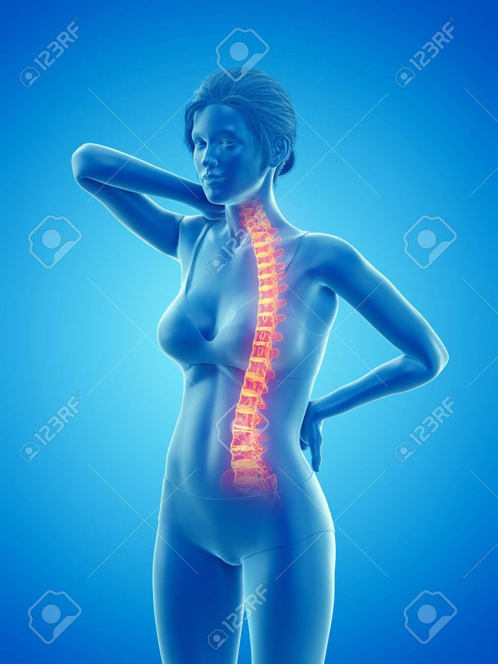 3d rendered medically accurate illustration of a woman having a painful back - 140958328