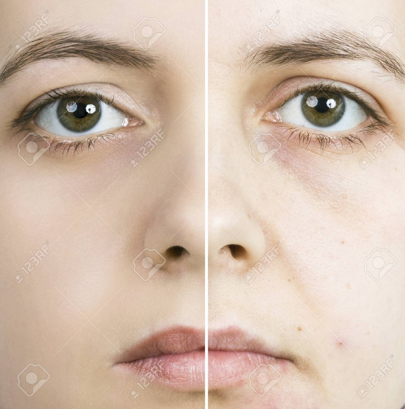 Woman with spotty skin with deep pores and blackhead and healed soft skin Stock Photo - 12983608
