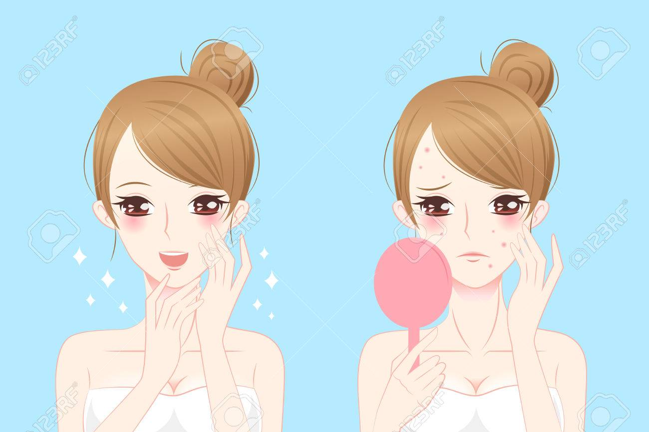 cartoon woman with acne before and after - 68790506
