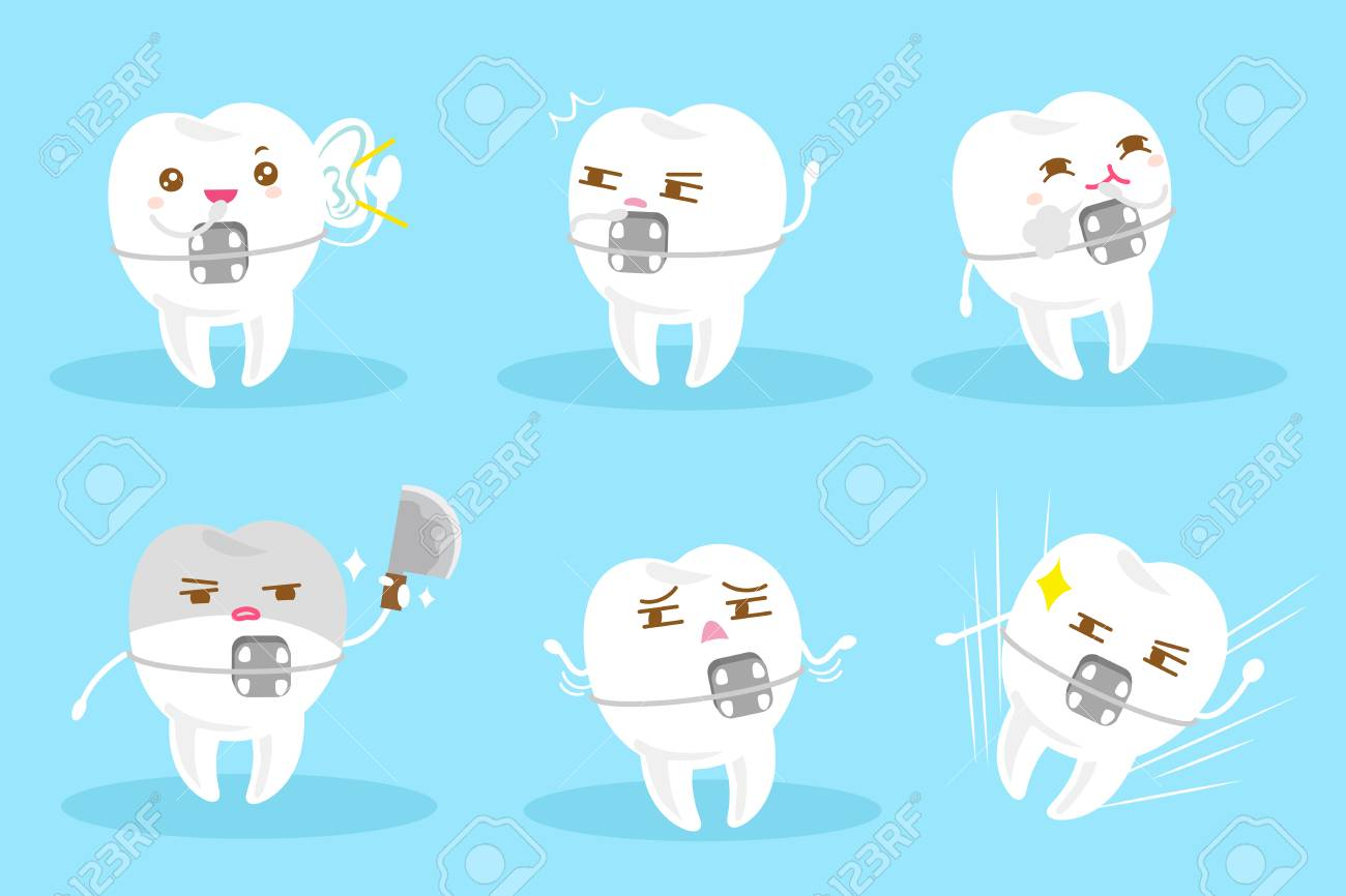 Tooth Wear Braces With Different Emotion On The Blue Background ...