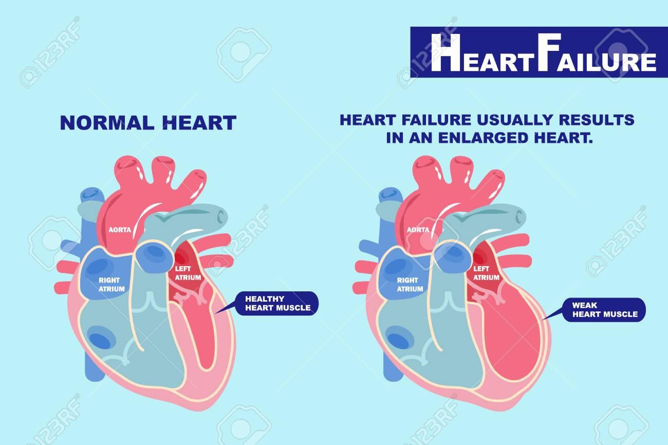 cartoon heart failure concept on the green background - 94352458
