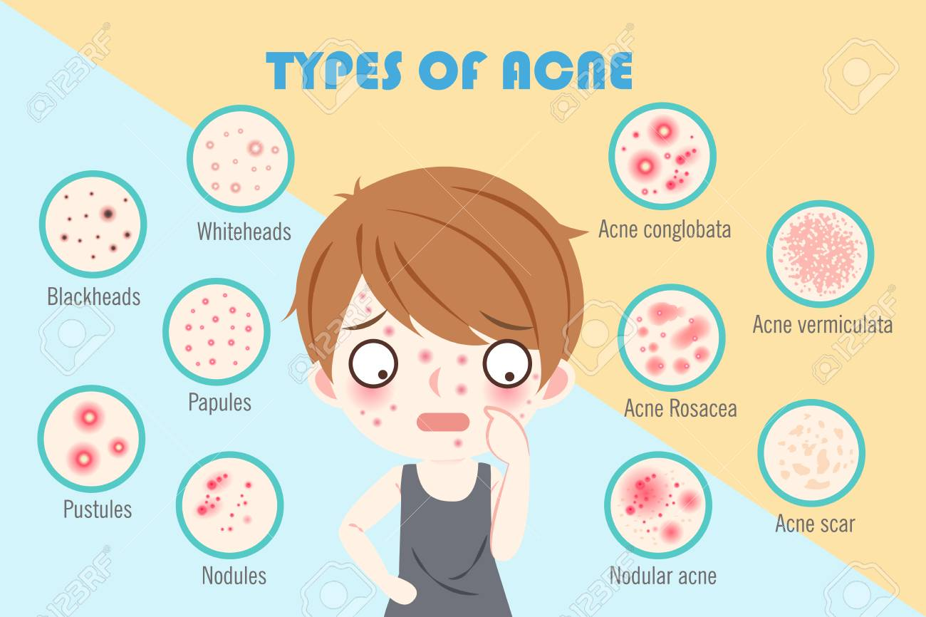 boy with types of acne on the blue background - 101187134