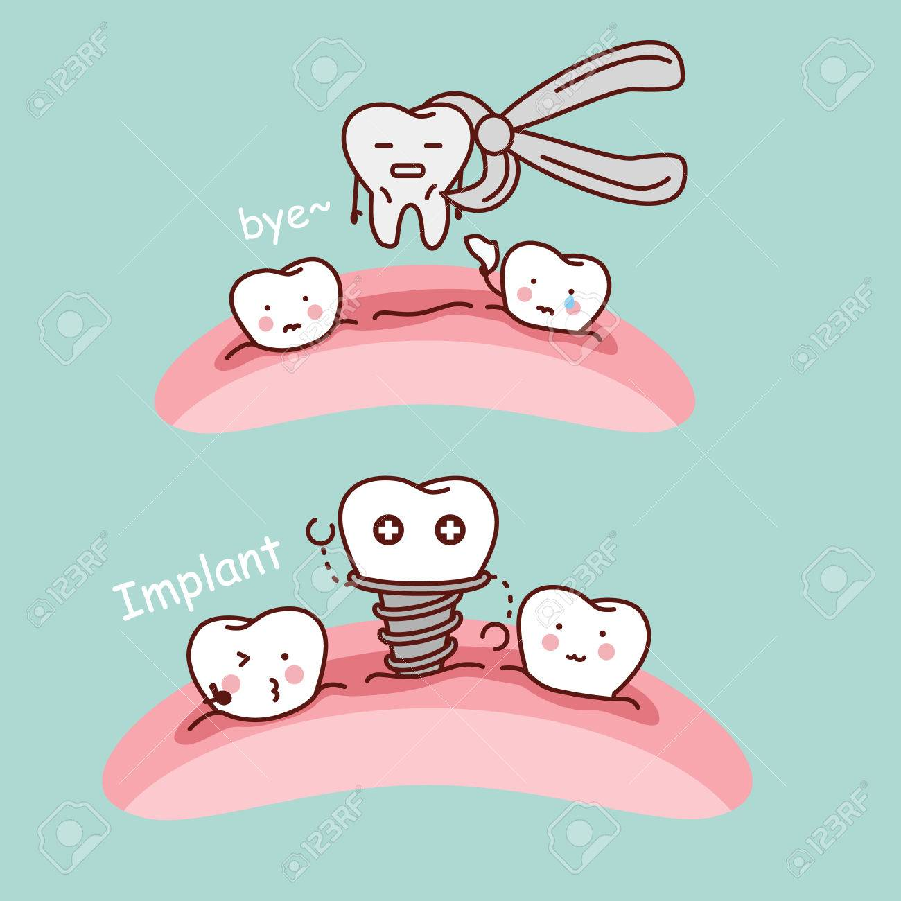 Cute Cartoon Tooth Extract And Implant Great For Health Dental Royalty Free Cliparts Vectors And Stock Illustration Image 69288566
