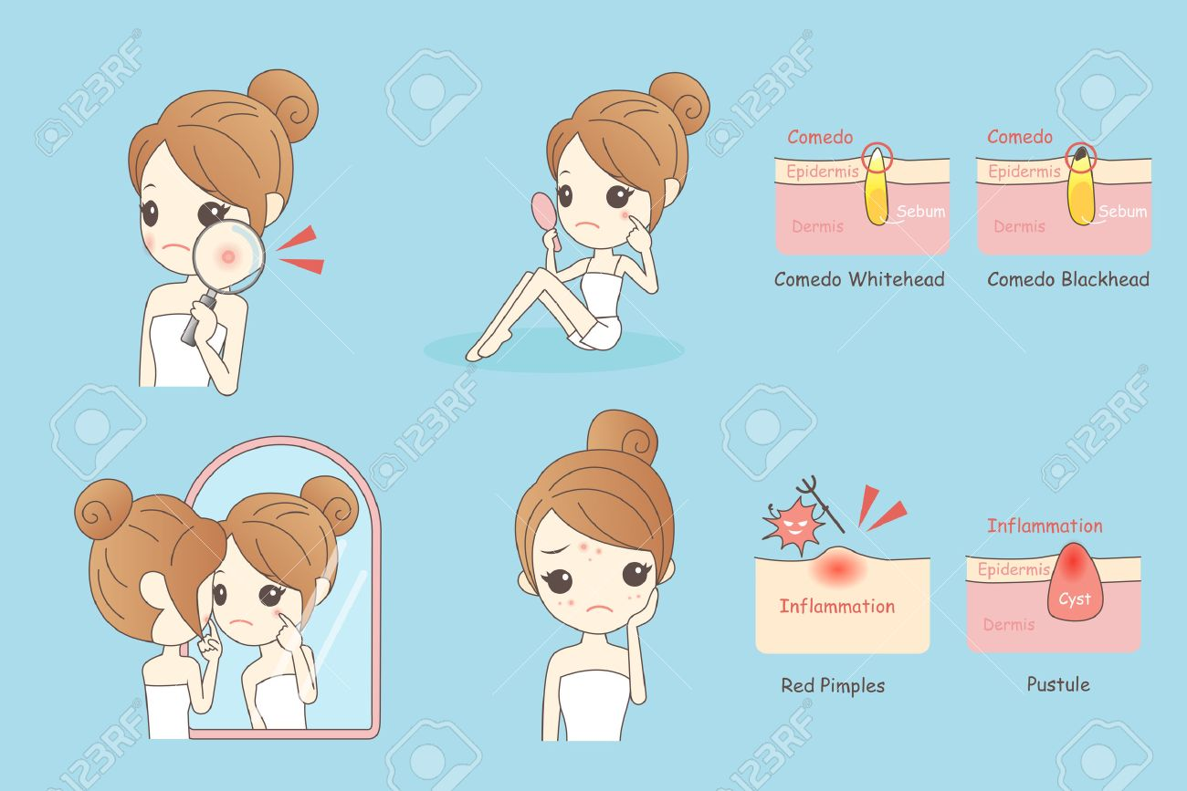 cartoon skin care woman with acne and magnifying glass check it, beauty - 69430375