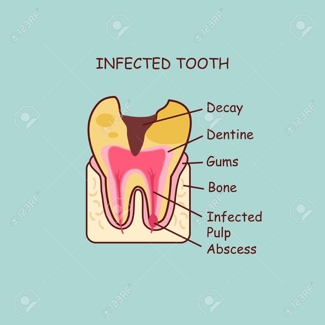 Anatomía Dental Dibujos Animados Diente Infectado, Gran Concepto De ...