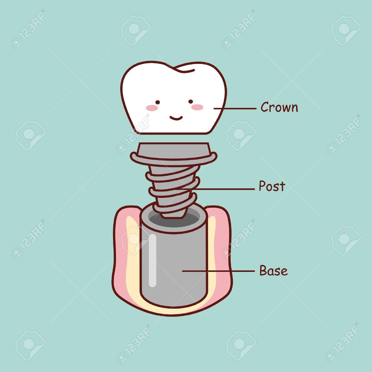 Linda Anatomía Implante Dental Dibujo Animado, Grande Para El ...