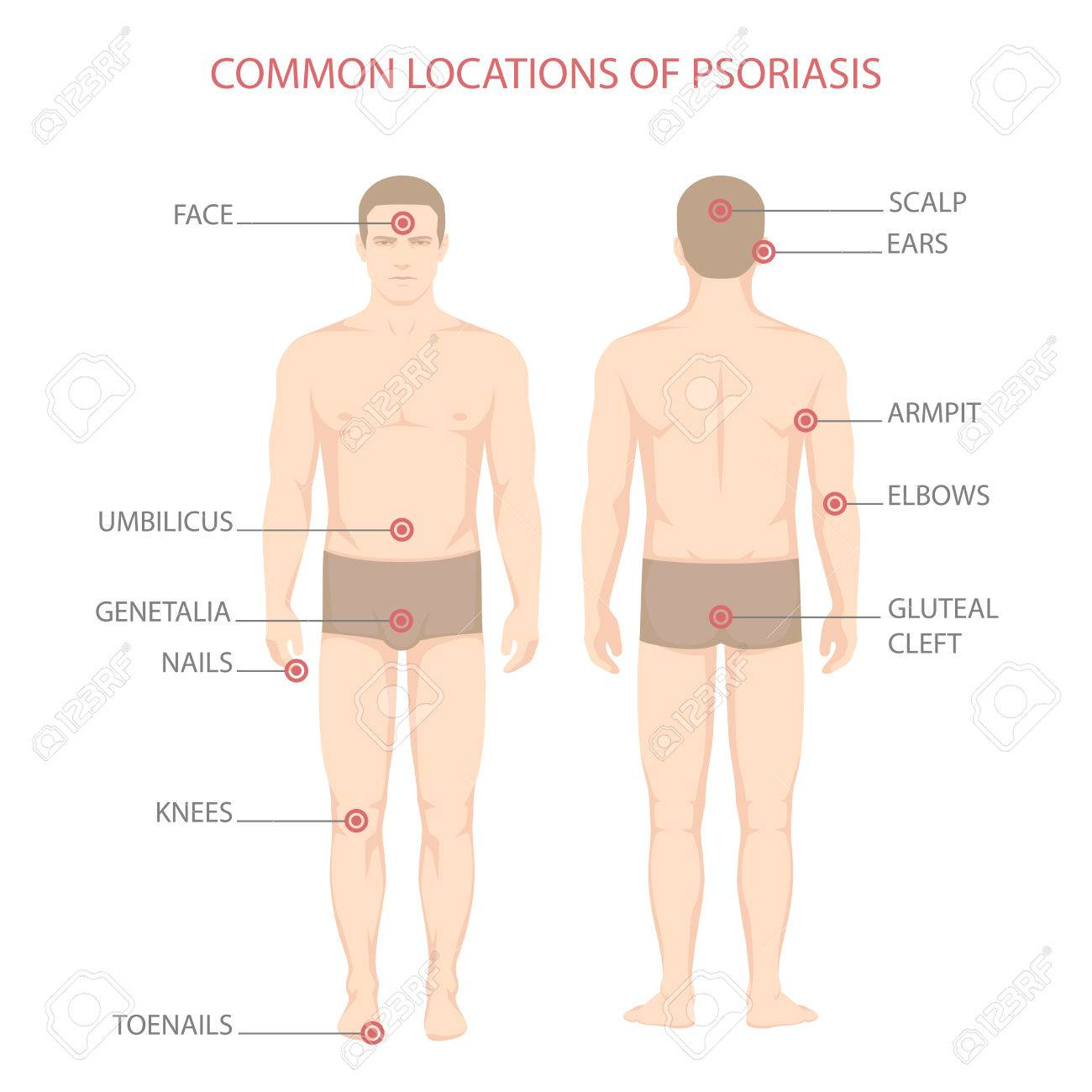Psoriasis Illness Diagram Human Body Skin Disease Royalty Free Cliparts Vectors And Stock Illustration Image 84157464