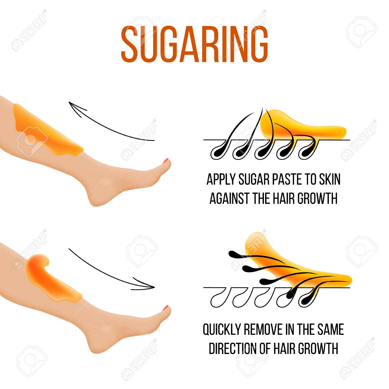 Depilation and sugaring  Hair removal  follicle  Woman leg with