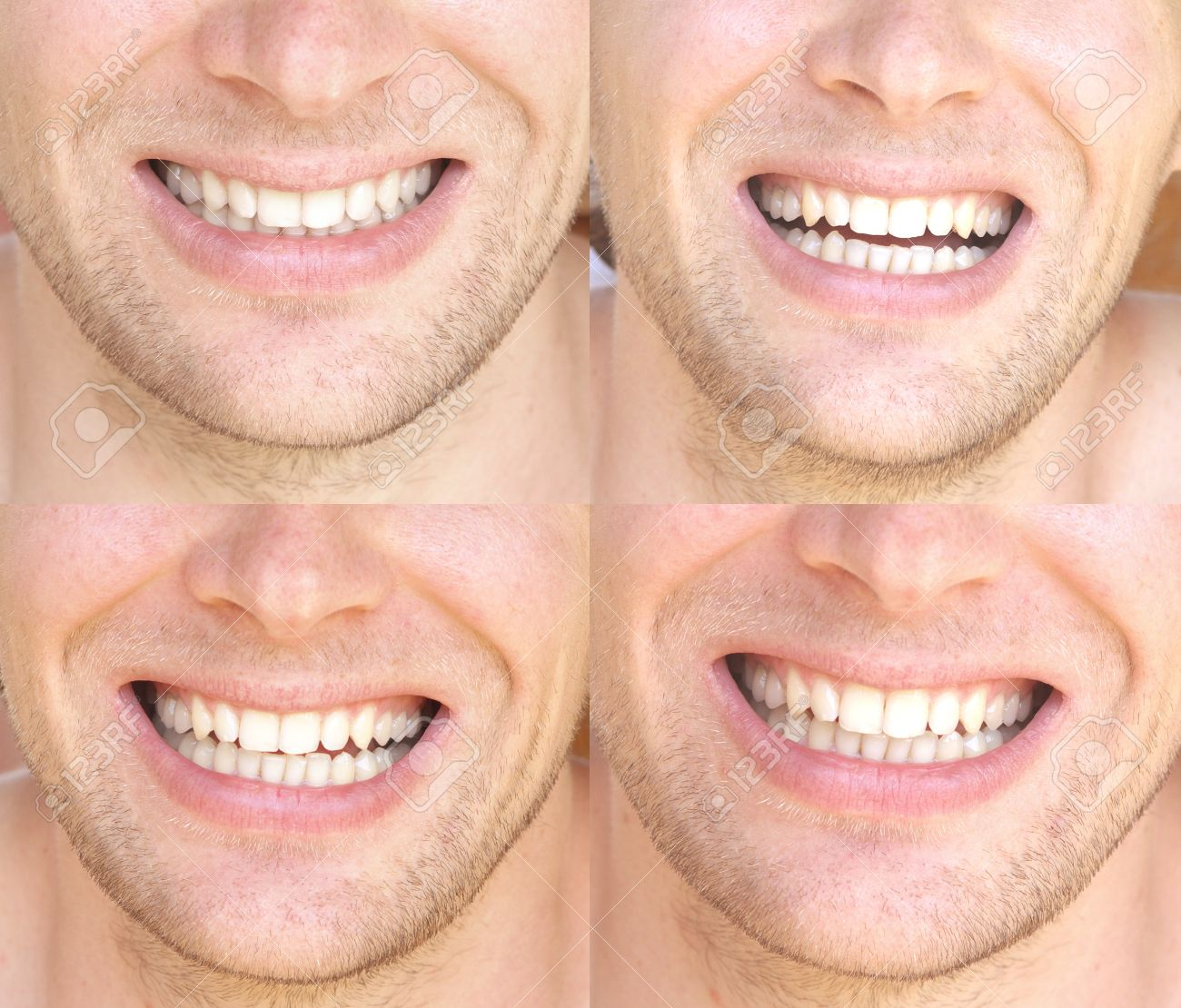 Smile Face Man with natural White Teeth Collage Dental Health Concept and Happiness Emotions Stock Photo - 21451646