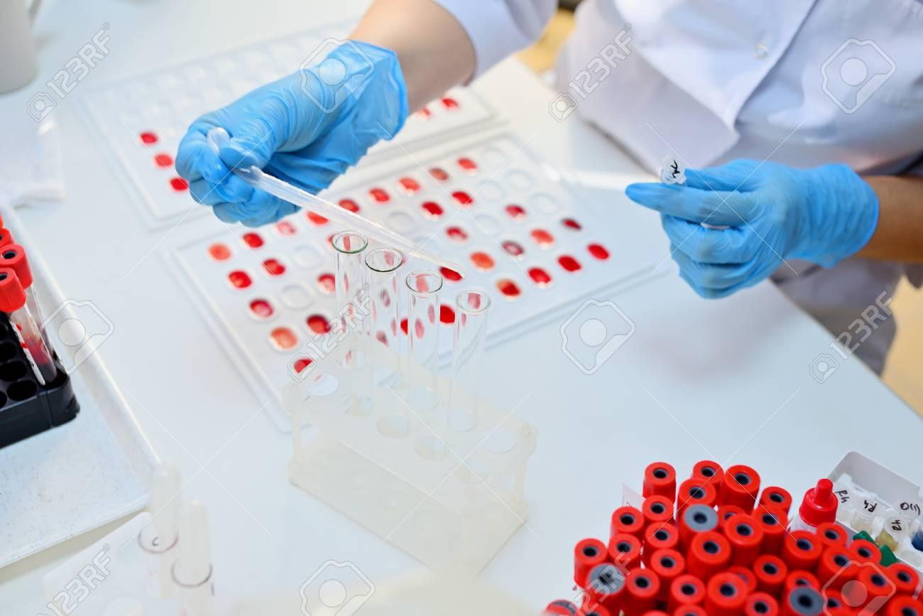 Laboratory determination of blood type. Blood test. - 112144556