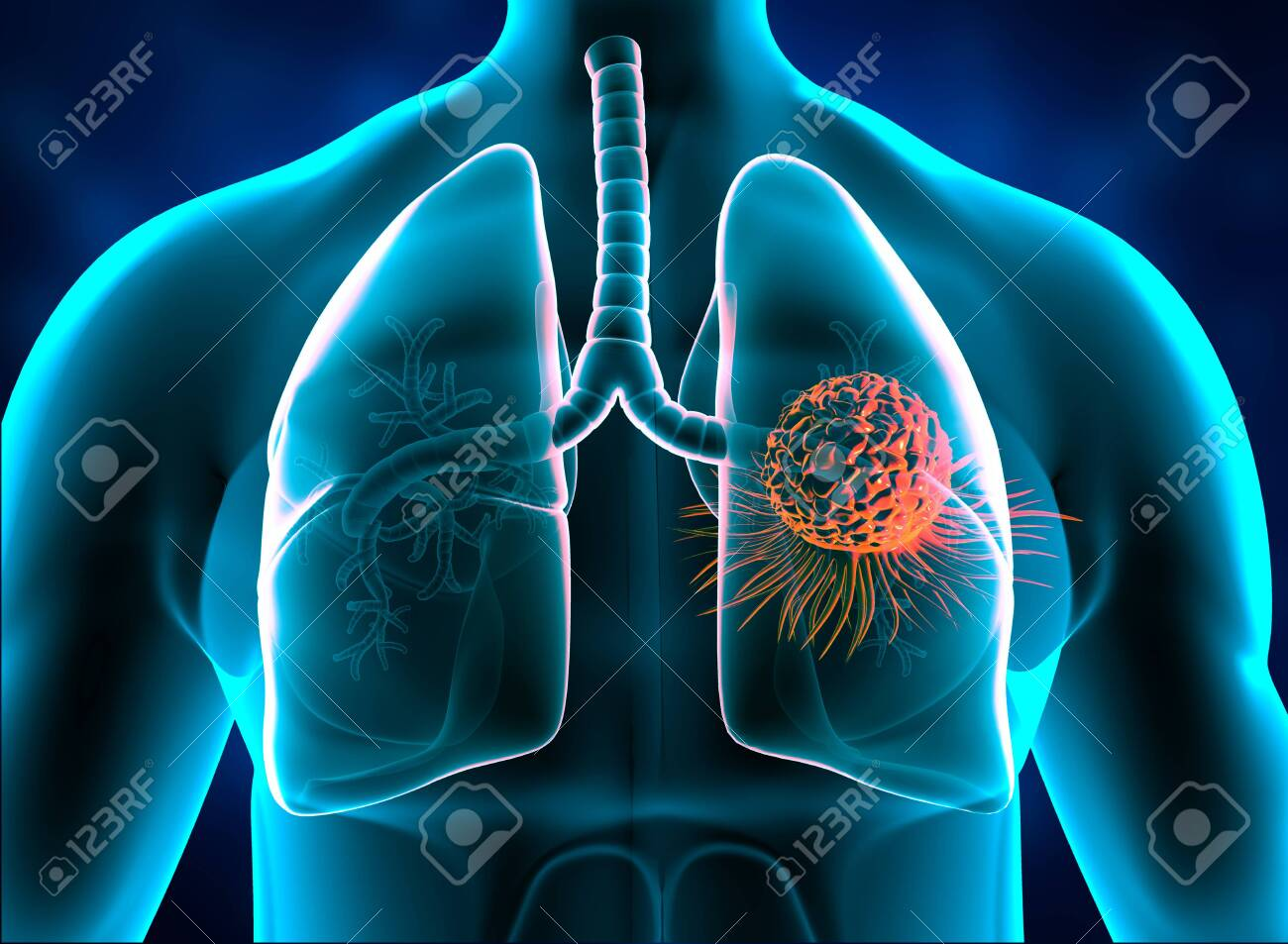 Lungs cancer, tumor in lungs. 3d illustration - 157519045