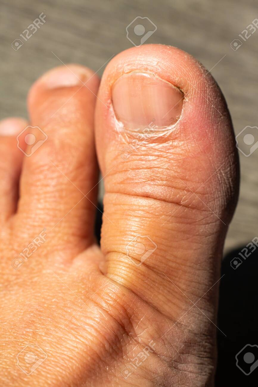 Women's Dry And Dirty Skin Big Toe On