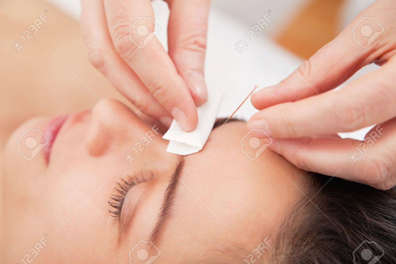 Acupuncture needles on head of a young woman at the spa Stock Photo - 13278737