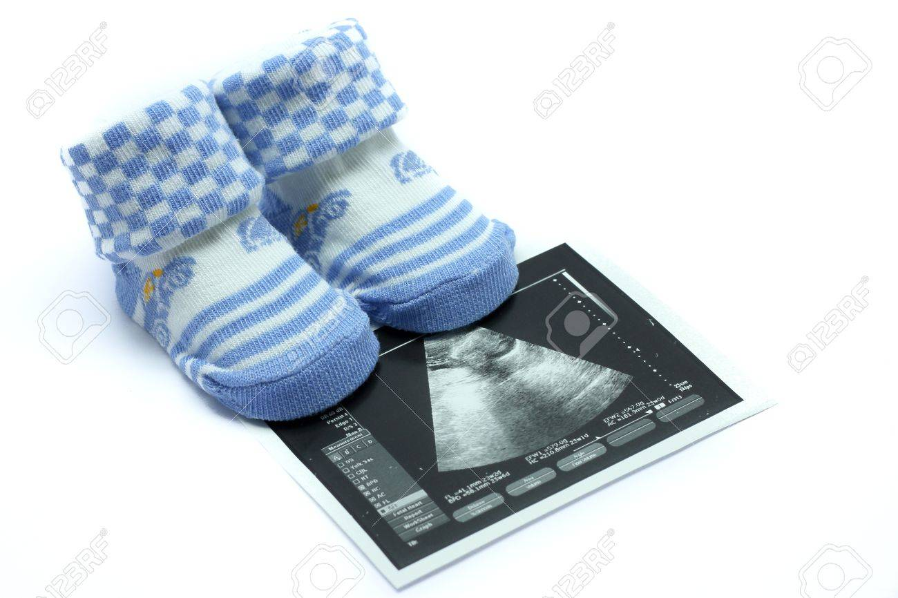 Baby shoes and Ultrasound images - 9371411