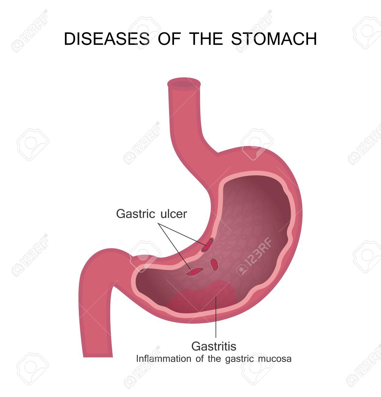 Maladies De L'estomac. Ulcère Peptique Et Gastrite. Clip Art Libres ...