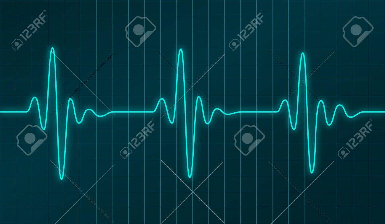 heart beats cardiogram or oscillation signal graph on electronic