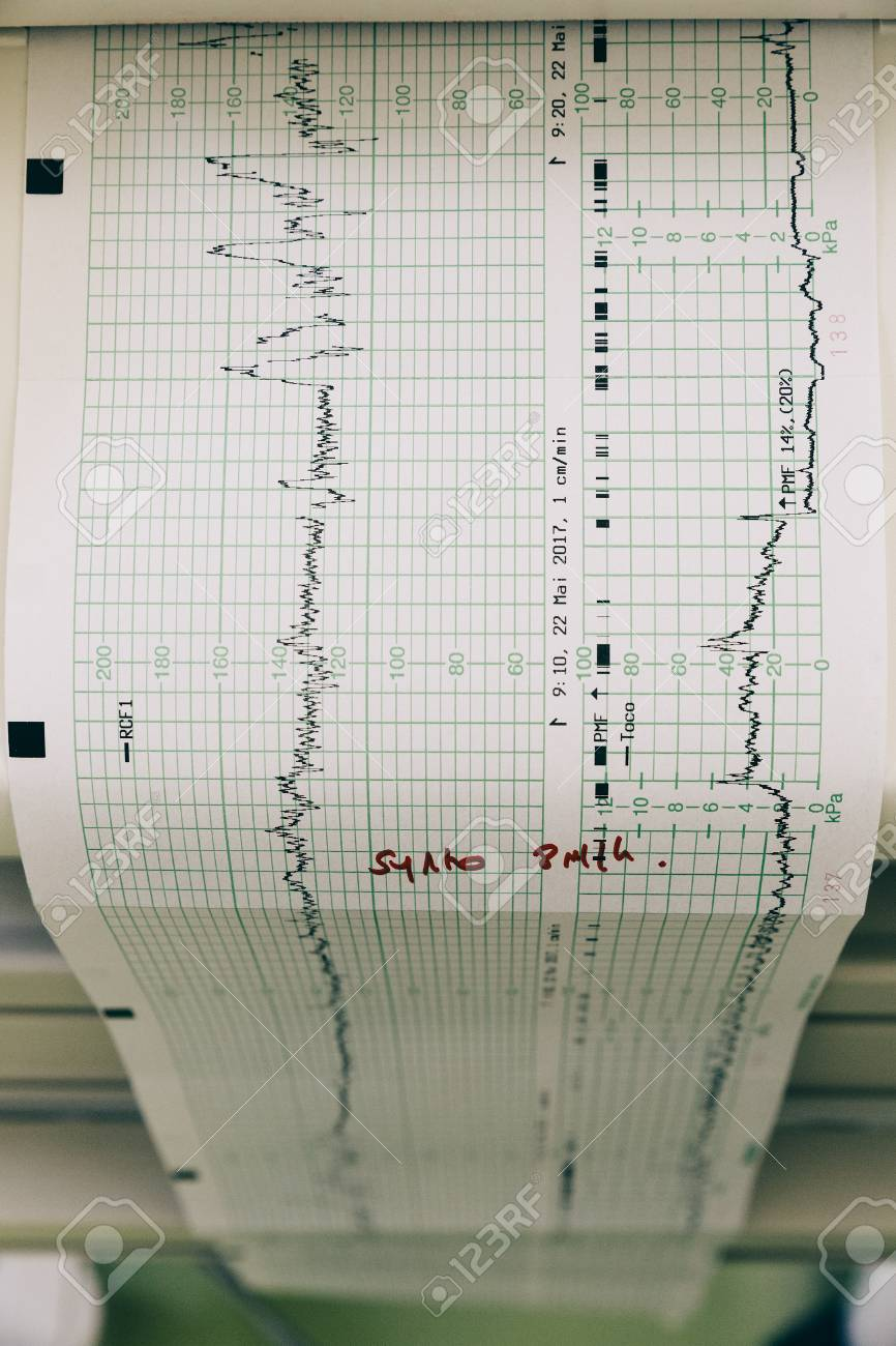 Printout coming out of a fetal monitoring device in a hospital. Stock Photo - 79741731