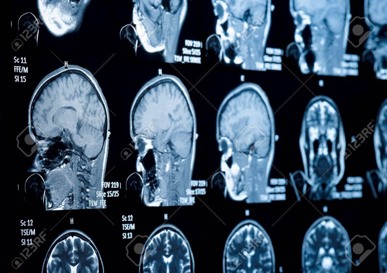 Kopf-Hals-MRT-Untersuchung, Private Informationen Gelöscht, Flachen ...