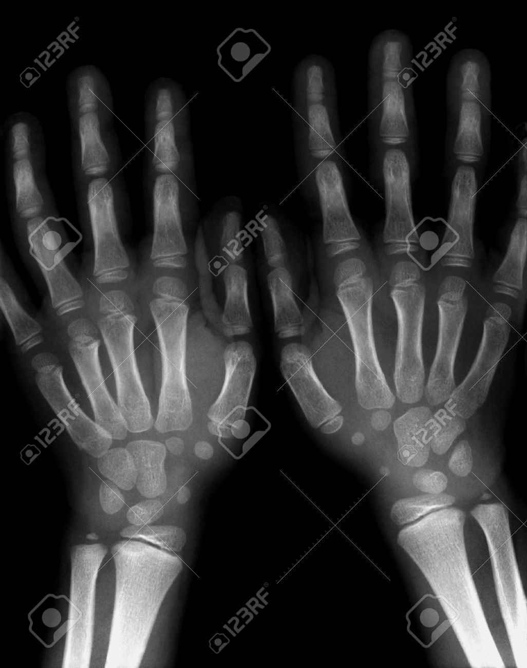 7 Years Old Boy Both Hands And Wrists X Ray Stock Photo Picture And