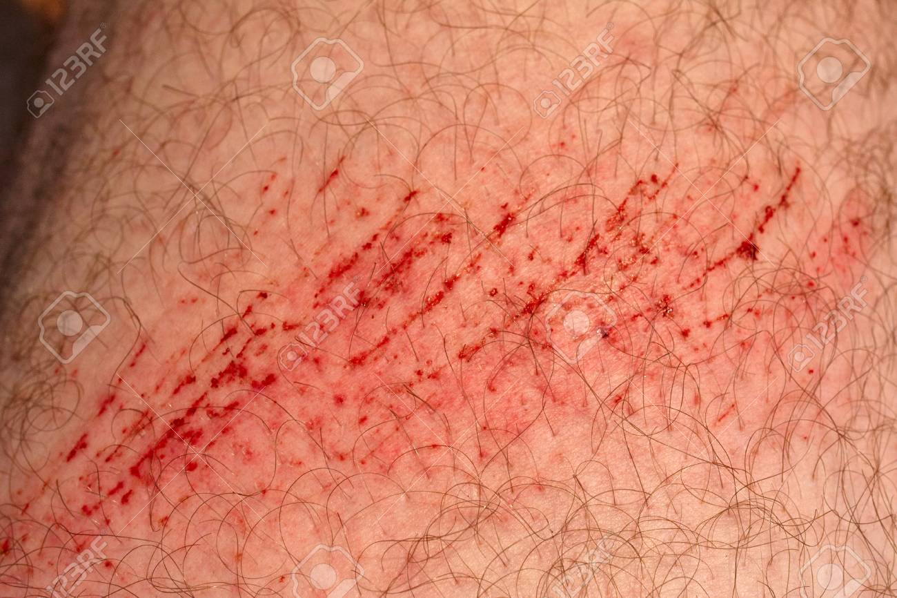 Scratch Skin Wound Or Cut On The Skin Red Blood Hairy Part Stock Photo Picture And Royalty Free Image Image 113492922 Textures.com is a website that offers digital pictures of all sorts of materials. scratch skin wound or cut on the skin red blood hairy part
