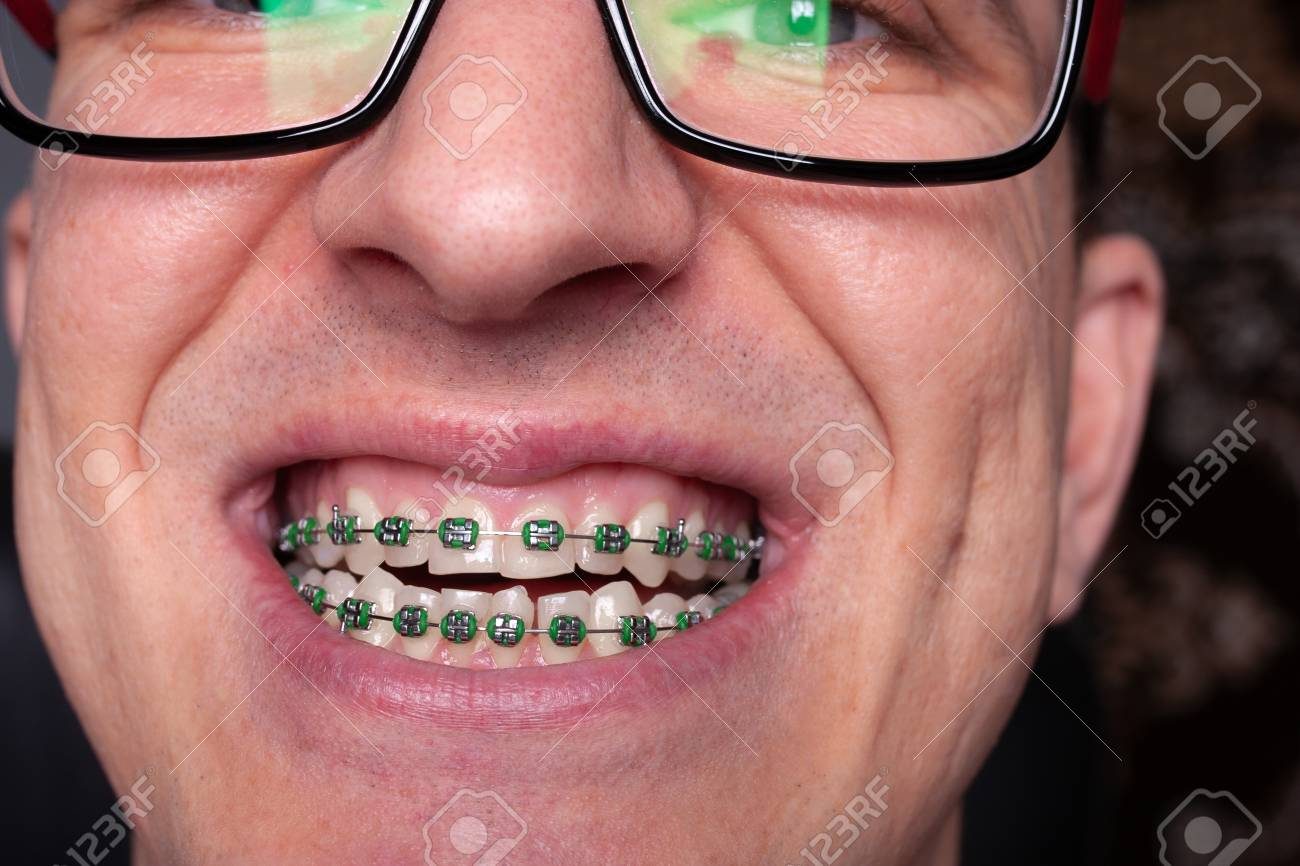Portrait Of A Man With Crooked Teeth And Metal Braces With Green