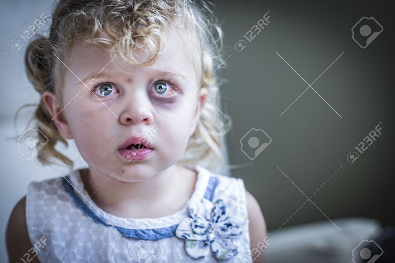 Sad and Frightened Little Girl with Bloodshot and Bruised Eyes. - 32257608