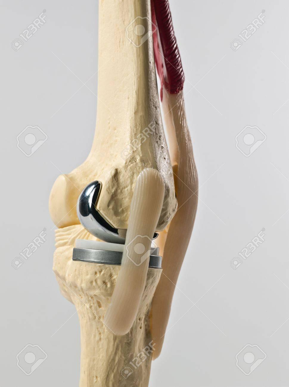 Modelo De Estudio Anatómico De Un Reemplazo De Rodilla Humana Fotos ...