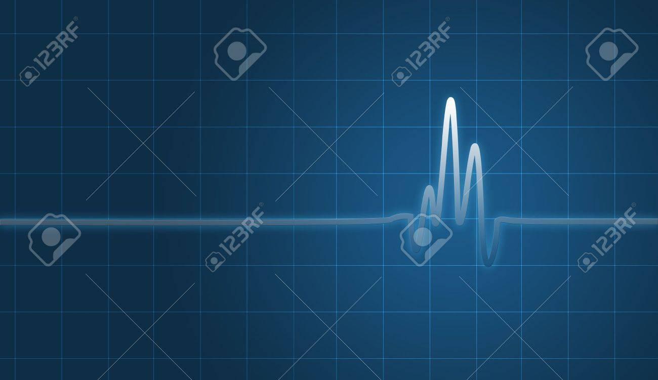 digital creation of an EKG chart showing heartbeat. Stock Photo - 4906076