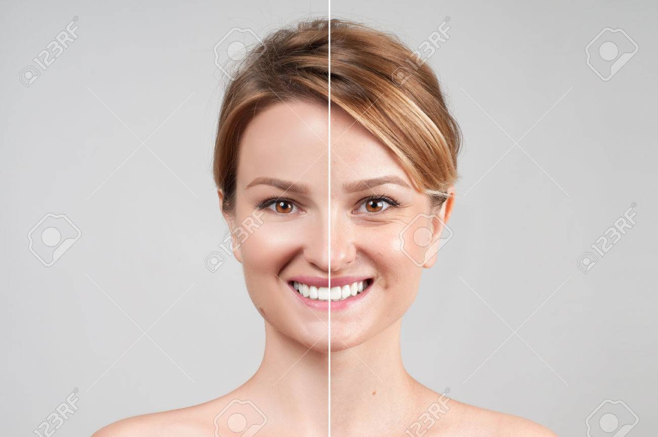 Concept of skin rejuvenation. Woman before and after cosmetic or plastic procedure, anti-age therapy - 80132229